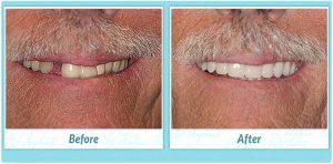 Dental Implants Smile Gallery Image of S.K.