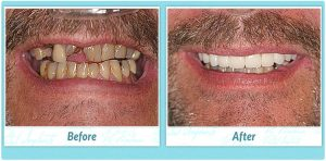 Dental Implants Smile Gallery Image of T.W.