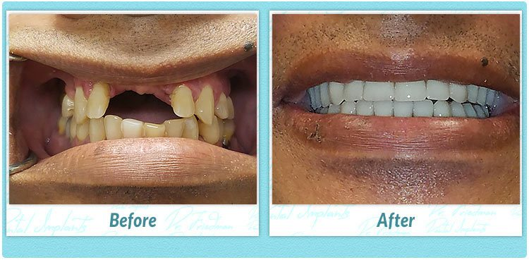 D.M. dental implant smile gallery image