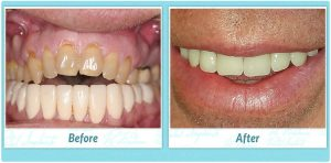 Dental Implants Smile Gallery Image of A.B.