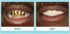 Dental Implants Smile Gallery Image of L.D.