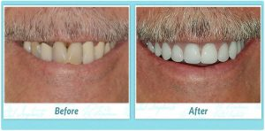 Dental Implant Smile Gallery Image of B.F.