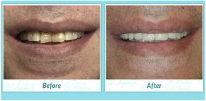Dental Implant Smile Gallery Image of L.B.