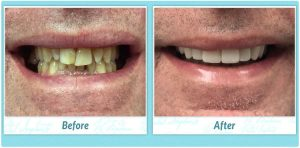 Dental Implants Smile Gallery Image of R.T.