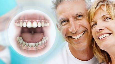 Snap On Dentures Florida