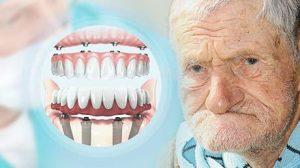 no bone zygomatic dental implants
