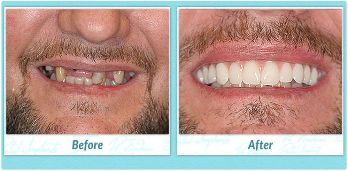 teeth in one day before and after image