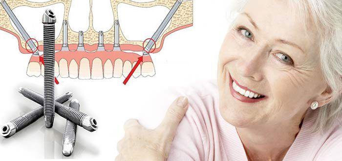Get Rid Of False Teeth Risks With All On 4 Dental Implants Florida