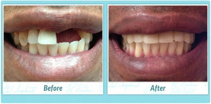 All-on-4 dental implants before and after image smile gallery