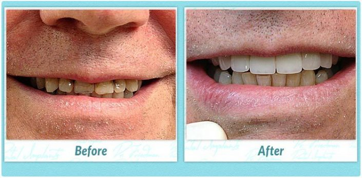 teeth in one day implants before and after