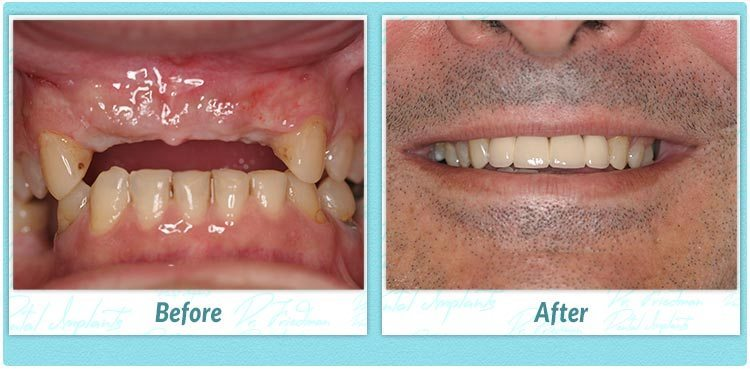 Dental Implant Case 934 Before And After Fdg Teeth In