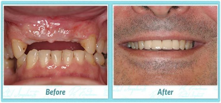 dental implant case 934 before and after