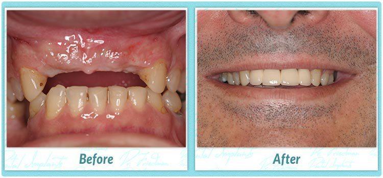 How Long Can I Wear An Implant Temporary Crown Fdg Teeth