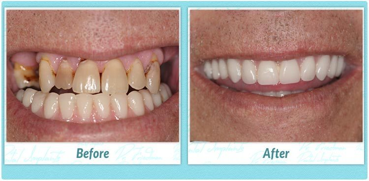 Dental Implant Success Stories 1 877 960 3442 Fdg