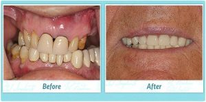 teeth in a day before and after image