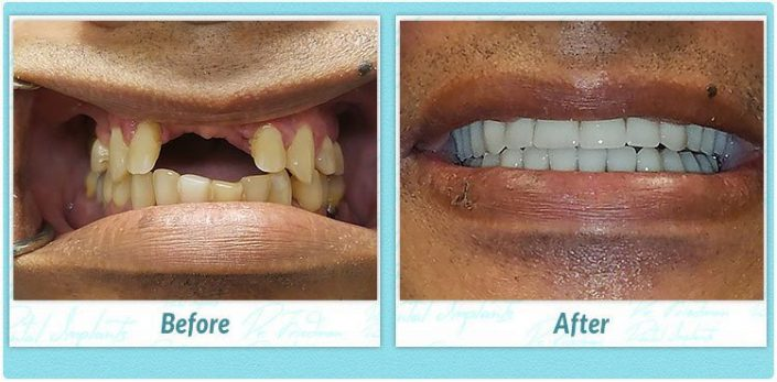 All on 4 dental implant surgery smile gallery before and after
