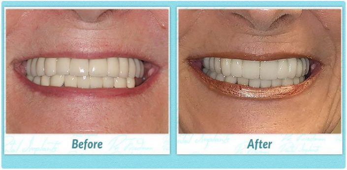denture replacement implants before and after
