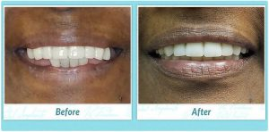 denture replacement before and after image