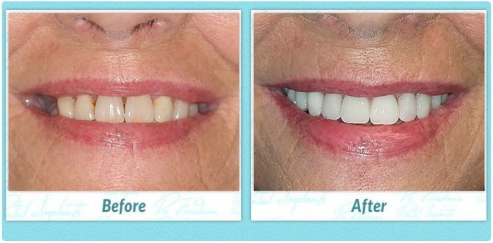 All-on-four dental implants smile gallery before and after