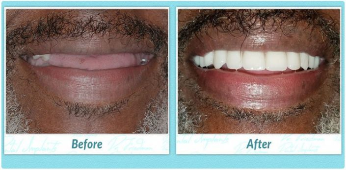 dental implant full upper before and after image