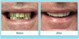 dental implant patient case 556 before and after