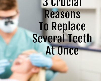 3 Crucial Reasons To Replace Several Teeth At Once