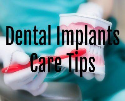 Dental Implants Care Tips