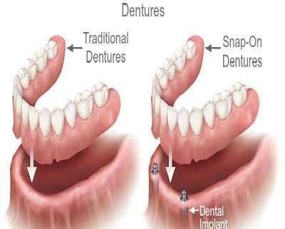 Differences Between Snap-On Dentures and Traditional Dentures