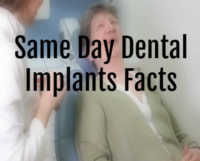 Same Day Dental Implants Facts