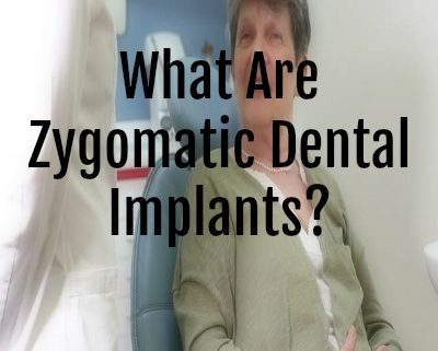 What Are Zygomatic Dental Implants